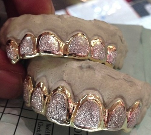 Real Yellow Gold Teeth Grills Custom fit by NameJewelrybyJenny