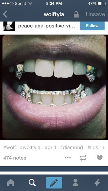 jewels goldteeth