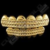 jewels,jewelry,custom gold grillz