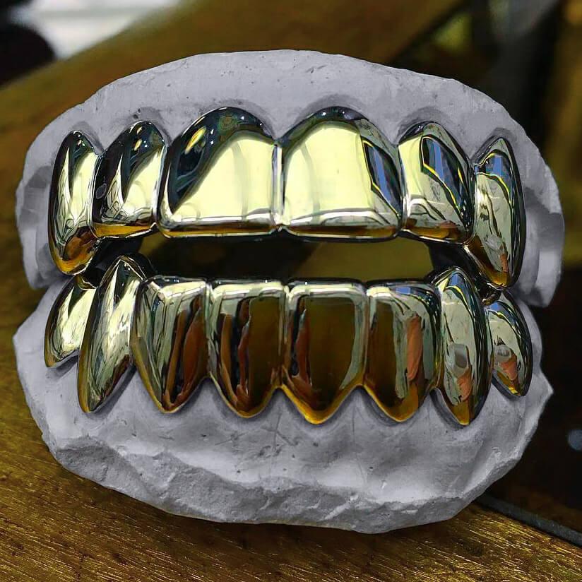 Custom Fitted Gold Teeth Grillz