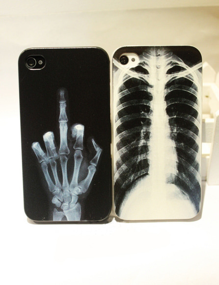 shego shopping mall — Cool X-ray Skull Bone Hard Cover Case For Iphone 4/4s